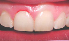 after gingivectomy