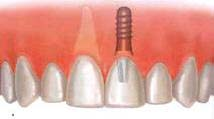 Dental implant placement