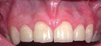 After Frenectomy