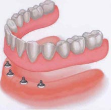 Denture w/O-ring attachments