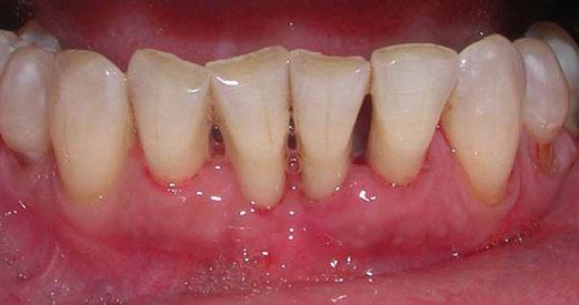 Non Surgical Therapy Four Corners Periodontics